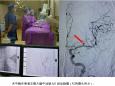 重庆市肿瘤医院神经肿瘤科完成DSA全脑血管造影术一例