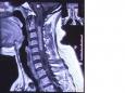 脑外科采用全椎板截骨原位回植成功完成2例髓内肿瘤切除手术