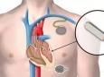 体内金属植入物能否行磁共振检查?