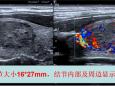 超声医学科成功开展甲状腺良性结节射频消融术