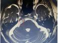 重庆大学附属肿瘤医院神经肿瘤科在复合手术室采用微创球囊压迫术,为三叉神经痛患者解除疼痛