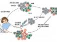 多发性骨髓瘤与造血干细胞移植