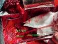 重庆大学附属肿瘤医院胸部肿瘤中心成功完成一例肺上沟瘤手术