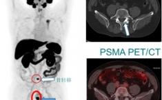 核医学科开展靶向前列腺特异性膜抗原(PSMA) PET/CT肿瘤显像